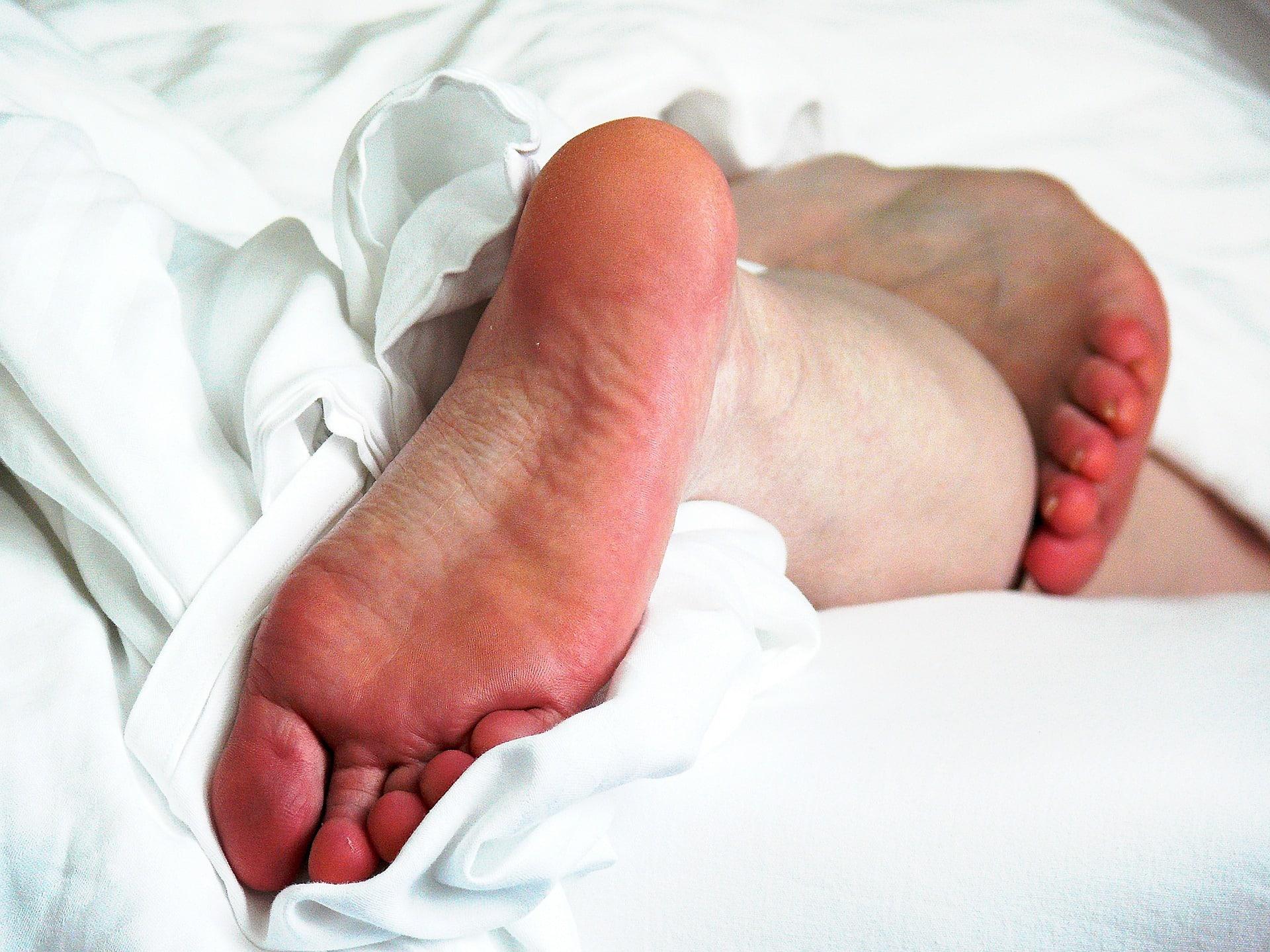 Juckreiz an den Füßen – das können Sie tun!